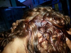 Ferimento que seria resultado da ação do Denarc na Cracolândia em jovem de 23 anos